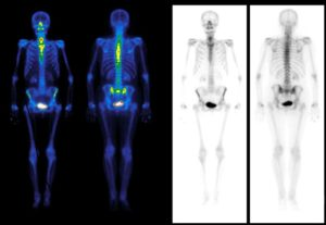 spect-ct scan image